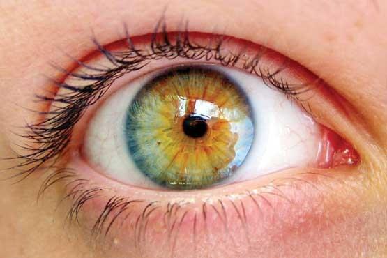 چرا عنبیه چشم رنگی است