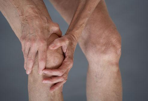 آرتروز زانو یا ورم مفاصل