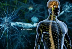 آسیب دیدن اعصاب در بیماری ام اس