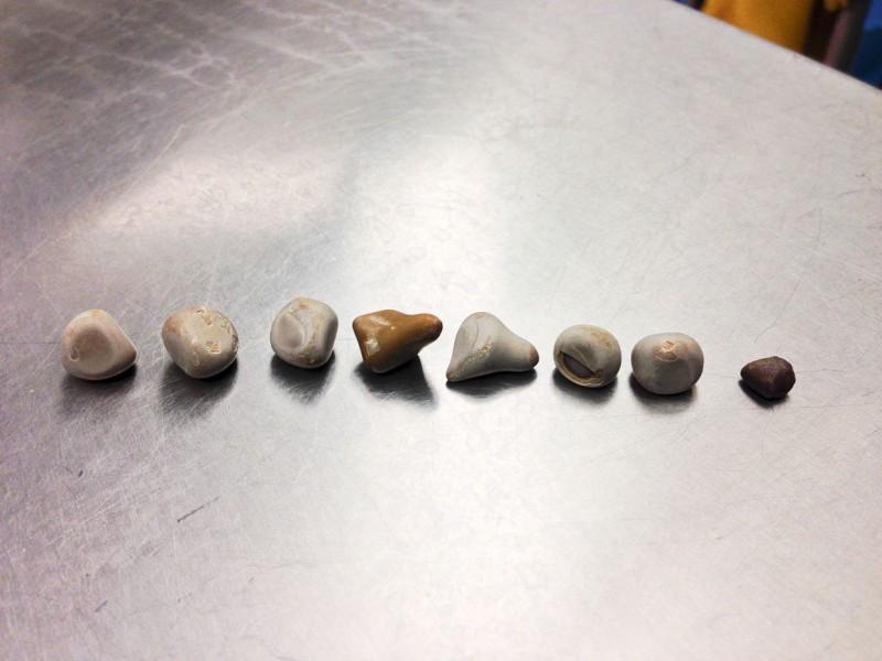 سنگ های کلیه