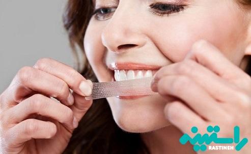 چسب های سفید کننده دندان