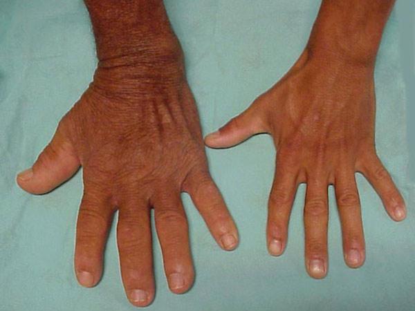 بیماری آکرومگالی