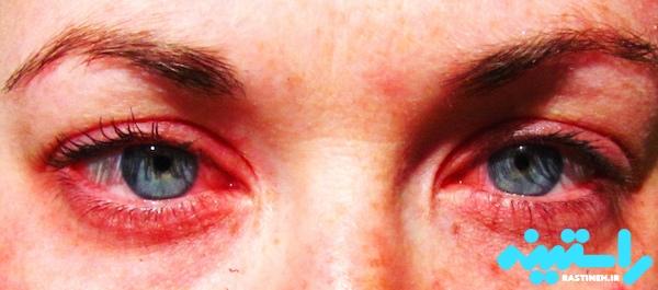 قرمزی چشم در اثر مصرف ماری جوانا