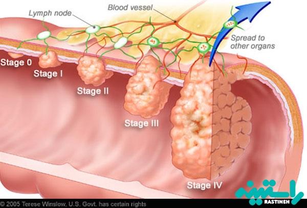 مراحل سرطان روده