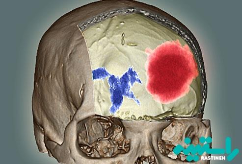 خونریزی در مغز