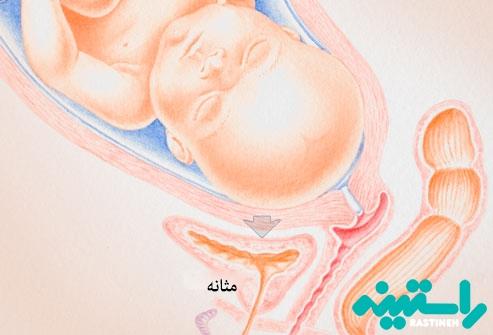عفونت ادراری و بارداری