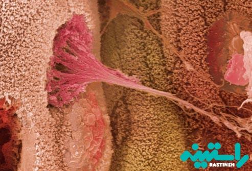 عوامل ایجاد کولیت زخمی