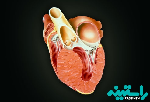 بیماری قلبی عضلانی: کاردیومیوپاتی