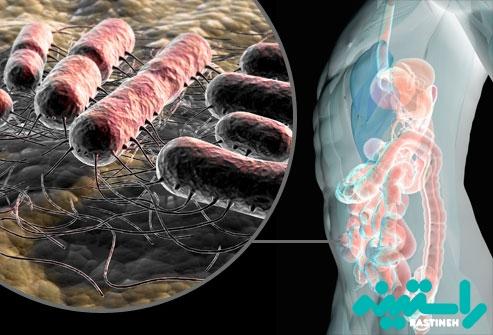 چگونه عفونت ادراری آغاز میشود؟