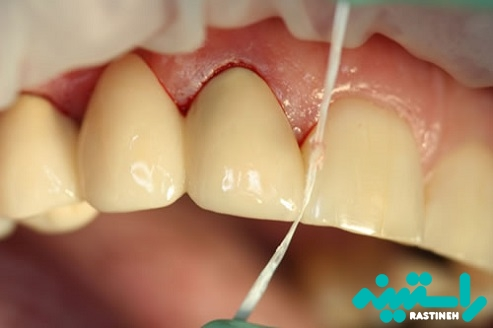 توصیه مهم برای استفاده از نخ دندان