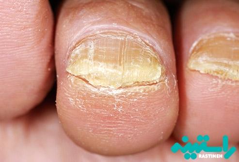 قارچ ناخن انگشت پا
