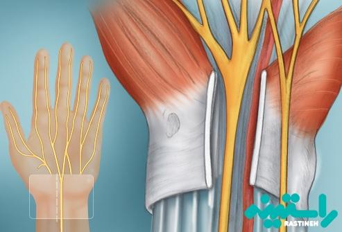 جراحی برای سندرم تونل کارپ