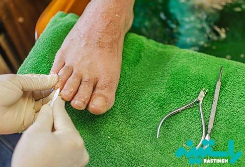 مراقبت از انگشتان پا