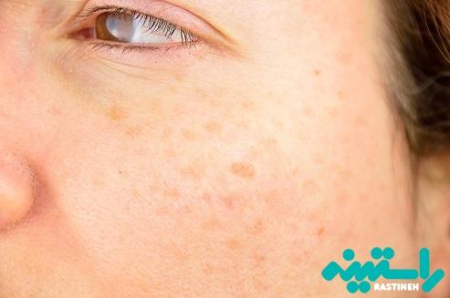 لک های پوستی ناشی از آفتاب