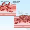 platete_blood_clot