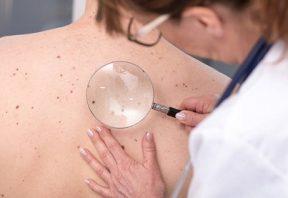 انواع سرطان پوست
