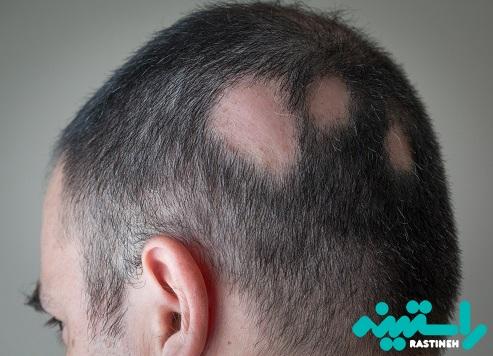 تصاویر انواع مختلف ریزش مو