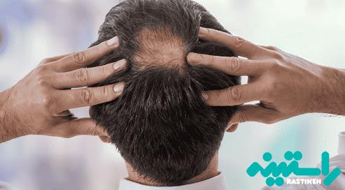 تنک شدن تدریجی بالای سر یک نوع ریزش مو