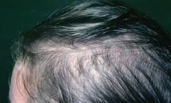 ریزش موی الگوی زنانه