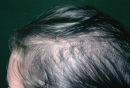 ریزش مو جلوی سر مردان
