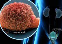 سرطان مردان