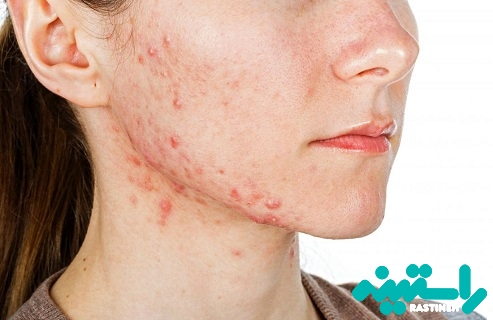 دلایل و درمان جوش صورت یا آکنه