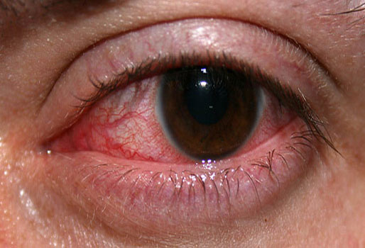 eye bleed خونریزی چشم و پیشگیری و درمان آن