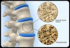 پوکی-استخوان1