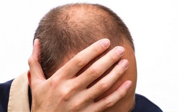 ریزش مو هم میهن