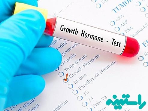 تست هورمون رشد
