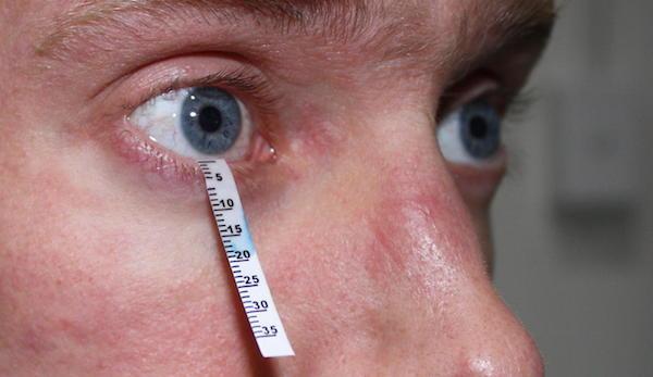 آزمایش خشکی چشم