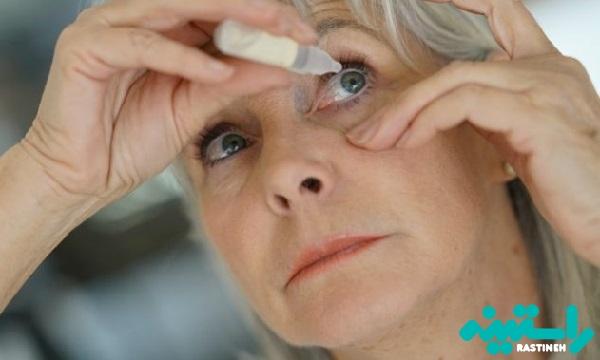 دلایل خشکی چشم
