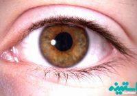 ایمپلنت عنبیه چشم