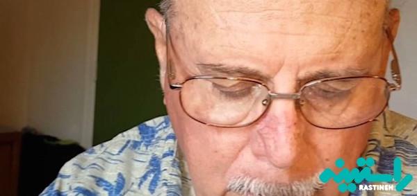 عوارض ایمپلنت عنبیه چشم