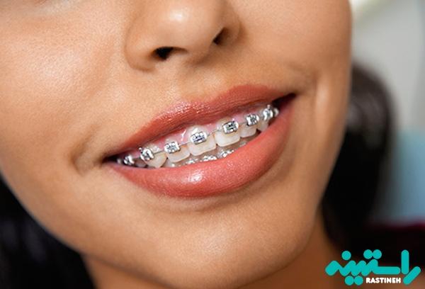 سیم کشی دندان