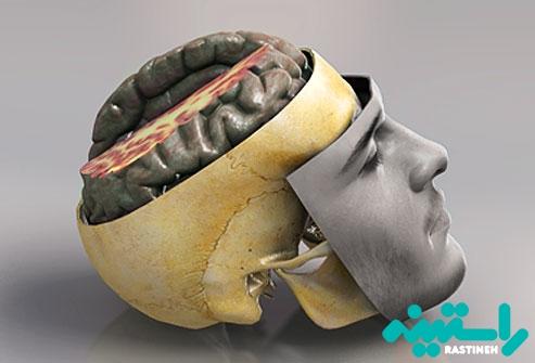 آسیب های سر و مغز