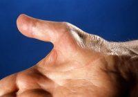 علائم درمان نشدن سندرم تونل کارپال
