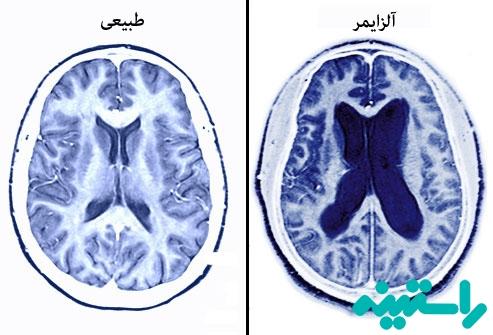 چه اتفاقی برای مغز می افتد