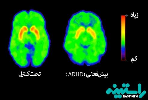 افراد مبتلا به ADHD