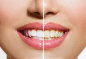 زردی دندان ها نشانه چیست ؟