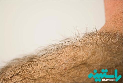 اصلاح موهای بدن