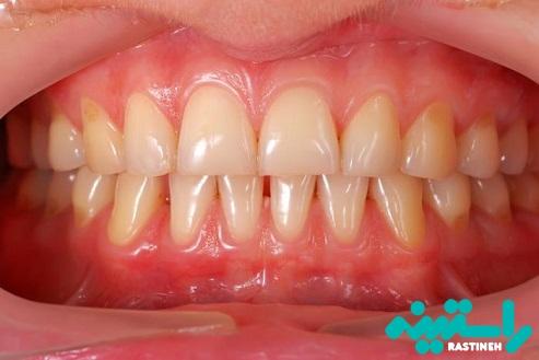 استفاده از تتراسایکلین و زردی دندان