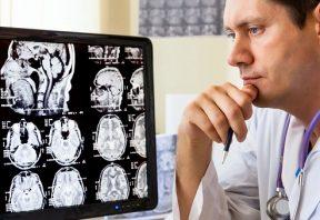 ارتباط مدارهای مغز و علائم افسردگی
