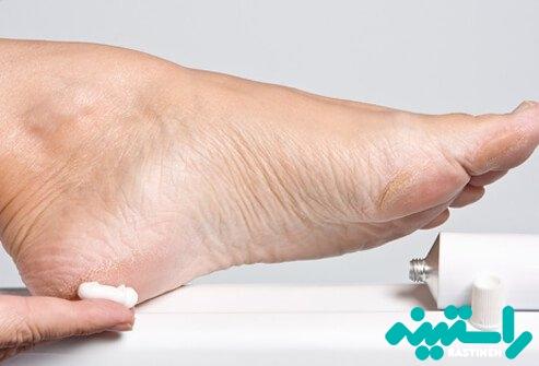 مرطوب کردن پوست پاها