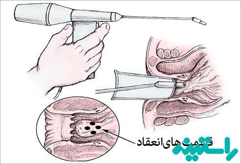 درمان پزشکی هموروئید