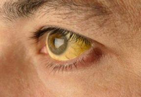 زردی پوست