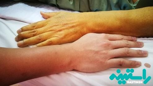 دلیل شایع زردی پوست