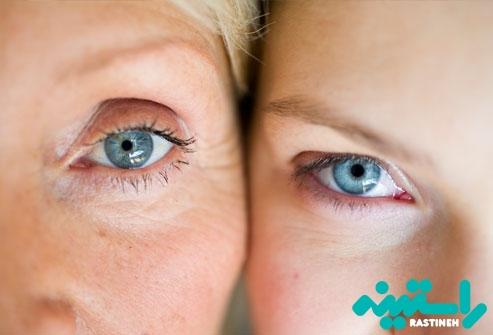 زنان مبتلا به فیبرومیالژیا