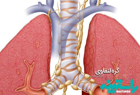 مرحله بندی سرطان ریه