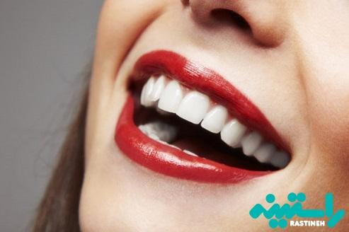 سلامت دندانها